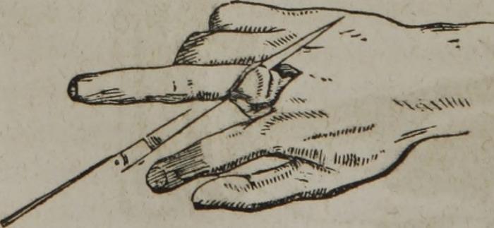 fingeramputation